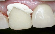 Коронка на зуб безметалловая керамика