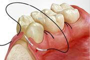 Стоматологические шовные материалы