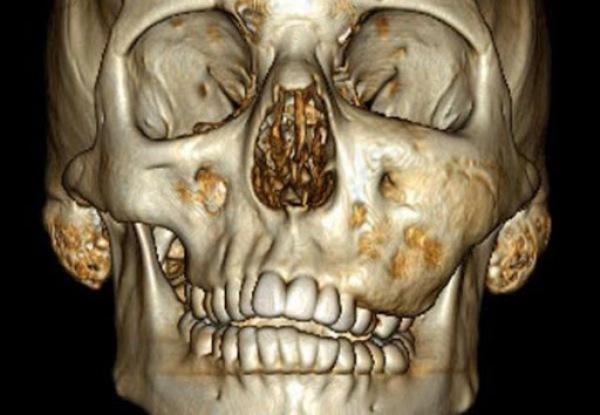 Прогноз лечения дисплазии челюсти