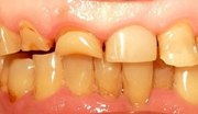 Некариозные поражения зубов у детей лечение