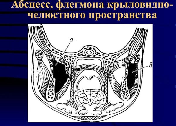 Околочелюстные абсцессы и флегмоны