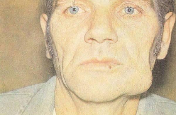 Опухоль под челюстью справа