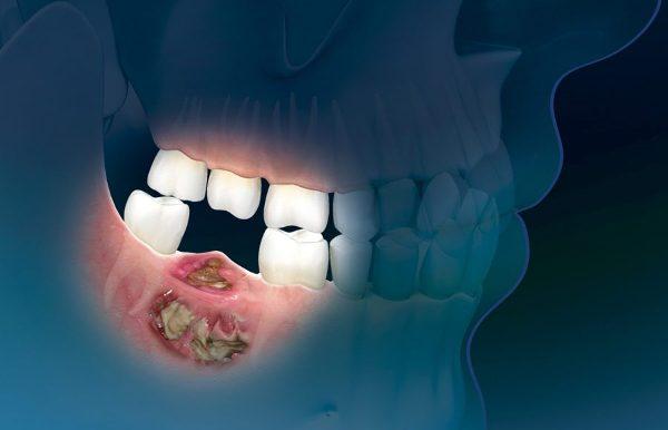 Остеонекроз нижней челюсти