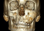 Дисплазия челюсти
